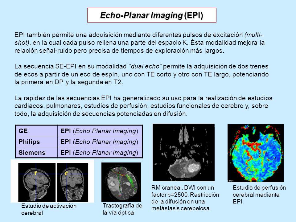 EPI también permite una adquisición mediante diferentes pulsos de excitación (multi- shot), en la cual cada pulso rellena una parte del espacio K. Ést