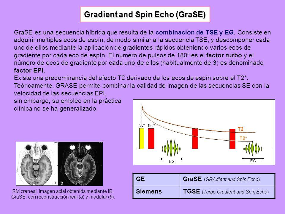 Gradient and Spin Echo (GraSE) GraSE es una secuencia híbrida que resulta de la combinación de TSE y EG. Consiste en adquirir múltiples ecos de espín,