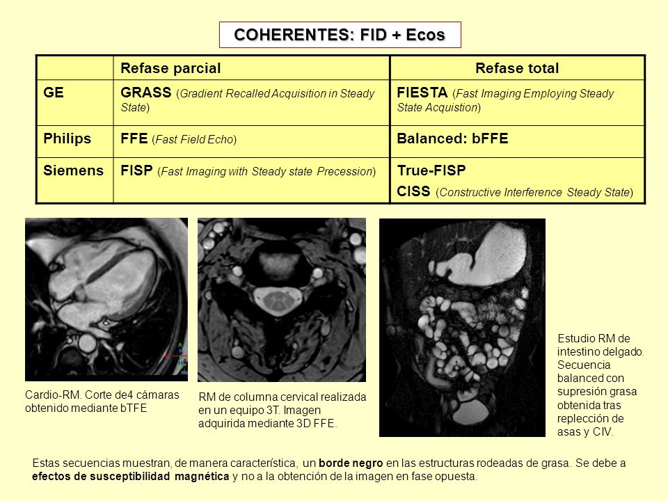 COHERENTES: FID + Ecos Refase parcialRefase total GEGRASS (Gradient Recalled Acquisition in Steady State) FIESTA (Fast Imaging Employing Steady State