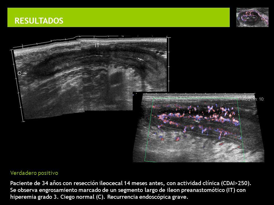 RESULTADOS Verdadero positivo Paciente de 34 años con resección ileocecal 14 meses antes, con actividad clínica (CDAI>250). Se observa engrosamiento m