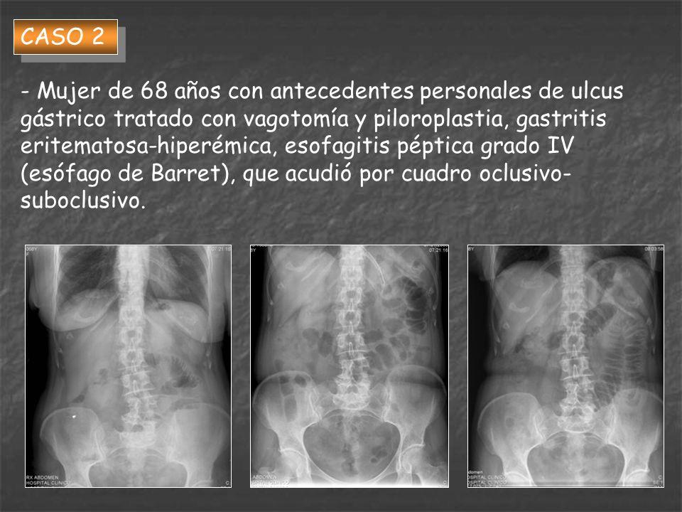 CASO 2 - Mujer de 68 años con antecedentes personales de ulcus gástrico tratado con vagotomía y piloroplastia, gastritis eritematosa-hiperémica, esofa