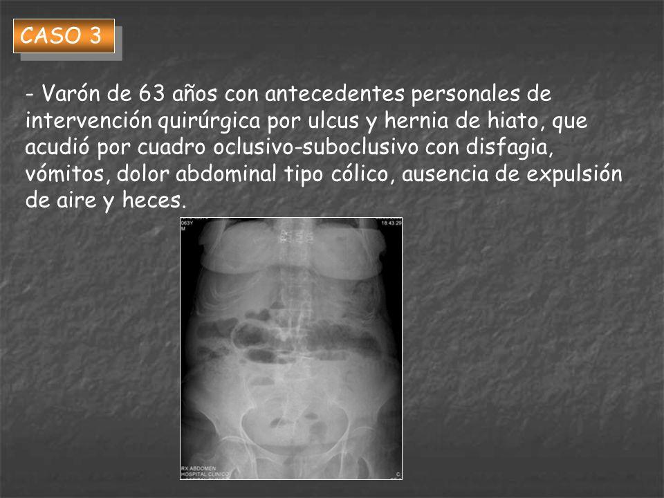CASO 3 - Varón de 63 años con antecedentes personales de intervención quirúrgica por ulcus y hernia de hiato, que acudió por cuadro oclusivo-suboclusi