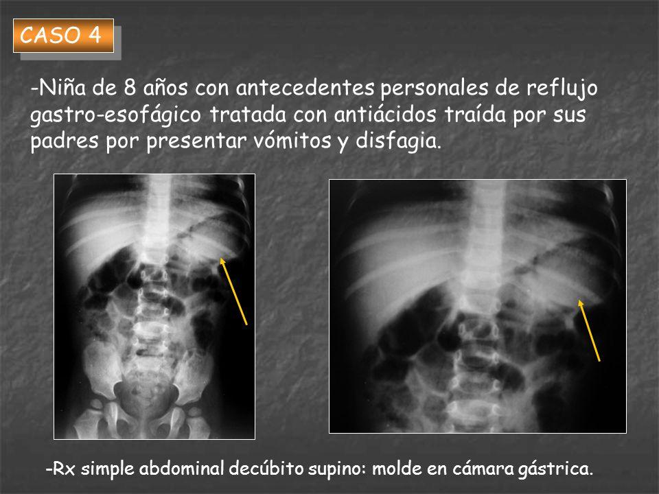 CASO 4 -Niña de 8 años con antecedentes personales de reflujo gastro-esofágico tratada con antiácidos traída por sus padres por presentar vómitos y di