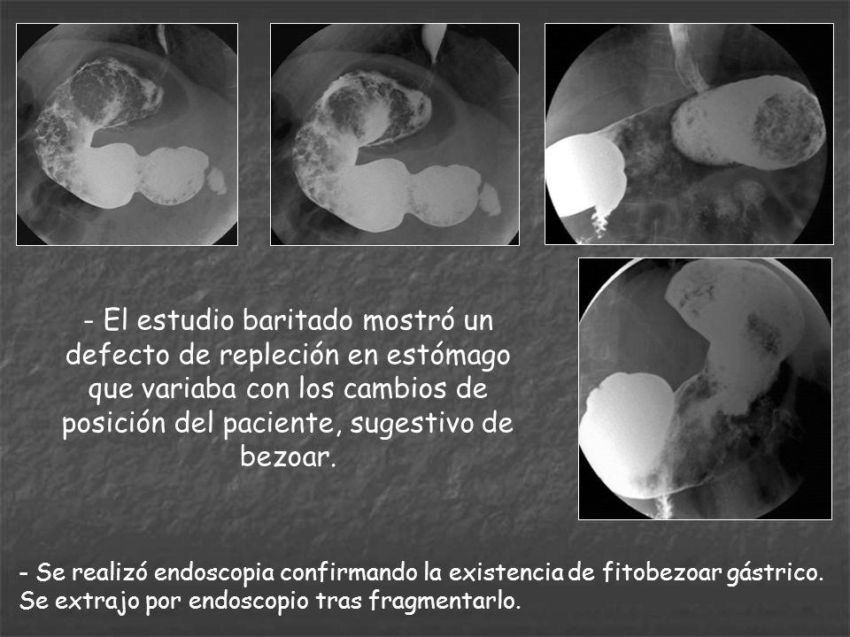 - El estudio baritado mostró un defecto de repleción en estómago que variaba con los cambios de posición del paciente, sugestivo de bezoar. - Se reali
