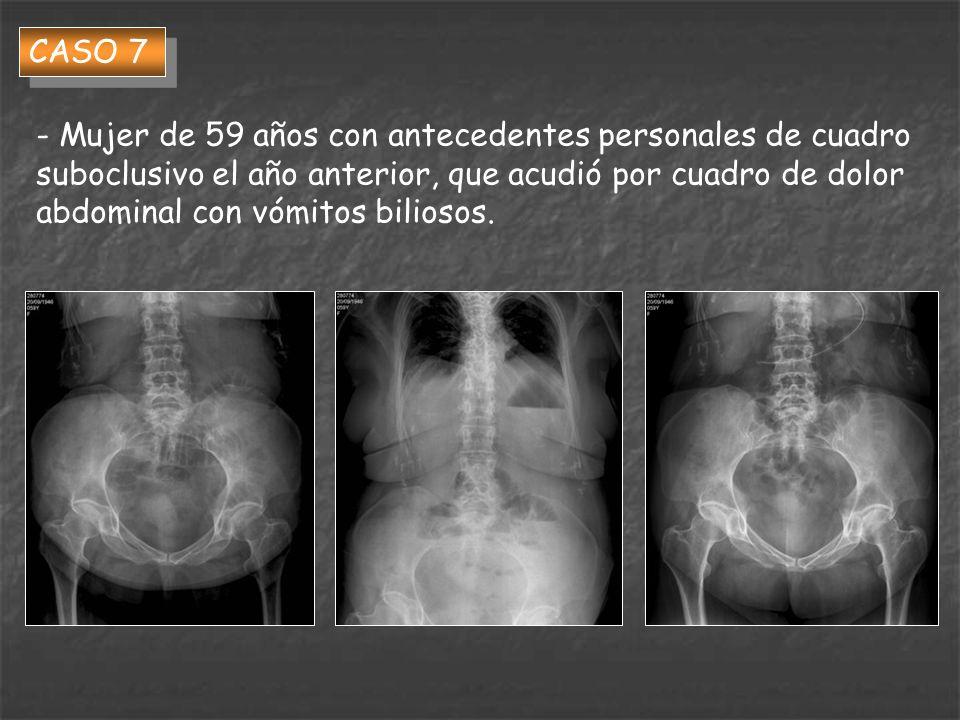 CASO 7 - Mujer de 59 años con antecedentes personales de cuadro suboclusivo el año anterior, que acudió por cuadro de dolor abdominal con vómitos bili