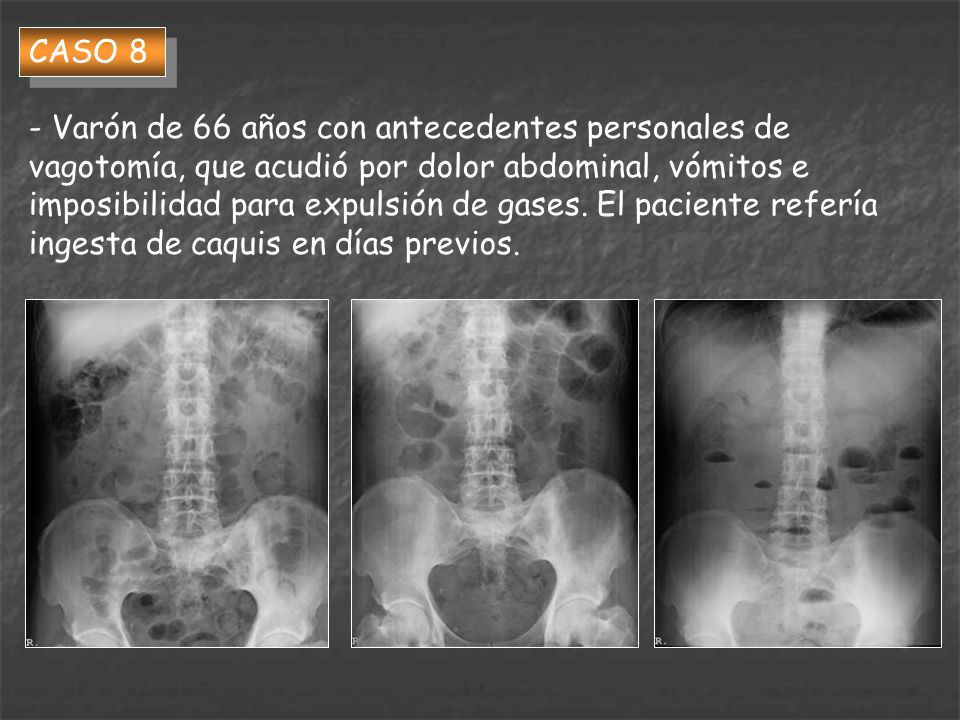 CASO 8 - Varón de 66 años con antecedentes personales de vagotomía, que acudió por dolor abdominal, vómitos e imposibilidad para expulsión de gases. E