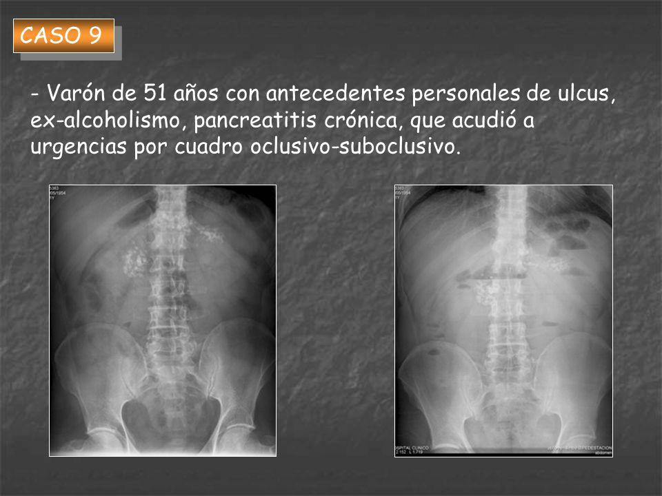 CASO 9 - Varón de 51 años con antecedentes personales de ulcus, ex-alcoholismo, pancreatitis crónica, que acudió a urgencias por cuadro oclusivo-suboc