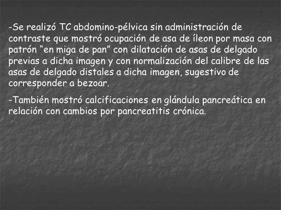 -Se realizó TC abdomino-pélvica sin administración de contraste que mostró ocupación de asa de íleon por masa con patrón en miga de pan con dilatación