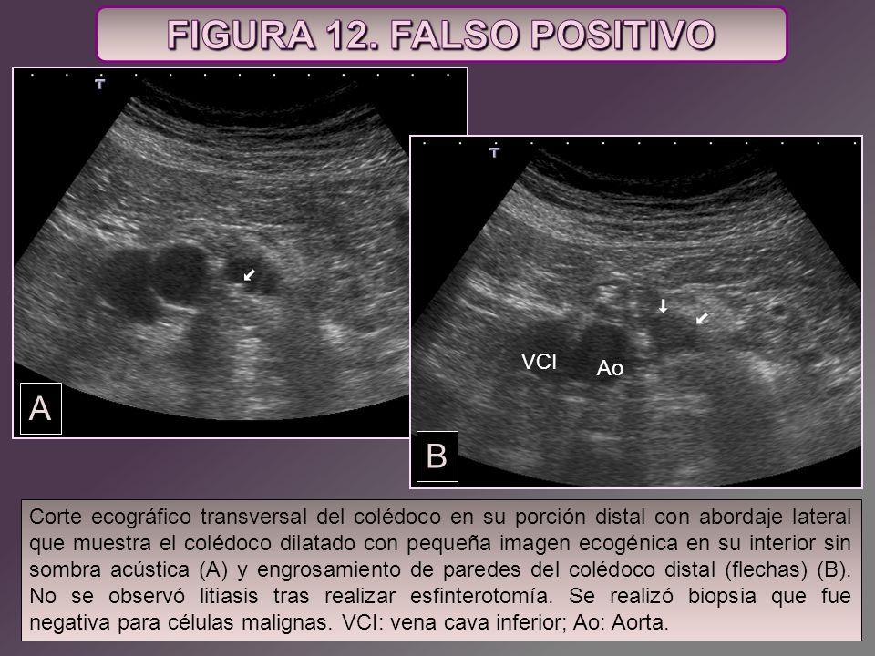 VCI Ao A VCI Ao B Corte ecográfico transversal del colédoco en su porción distal con abordaje lateral que muestra el colédoco dilatado con pequeña ima