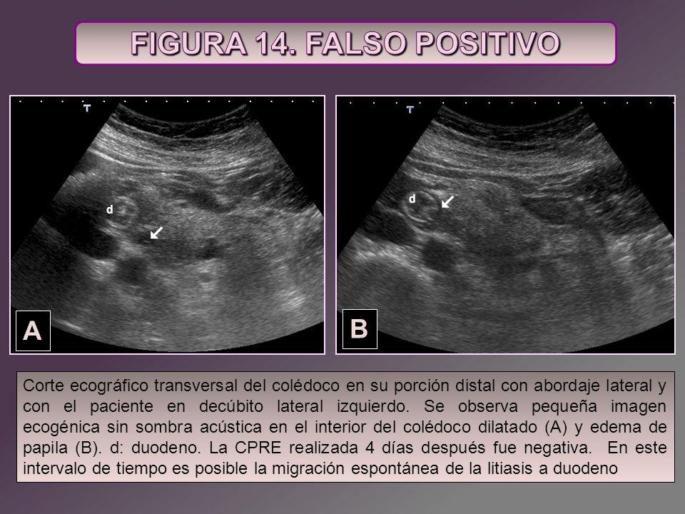 A B d d Corte ecográfico transversal del colédoco en su porción distal con abordaje lateral y con el paciente en decúbito lateral izquierdo. Se observ
