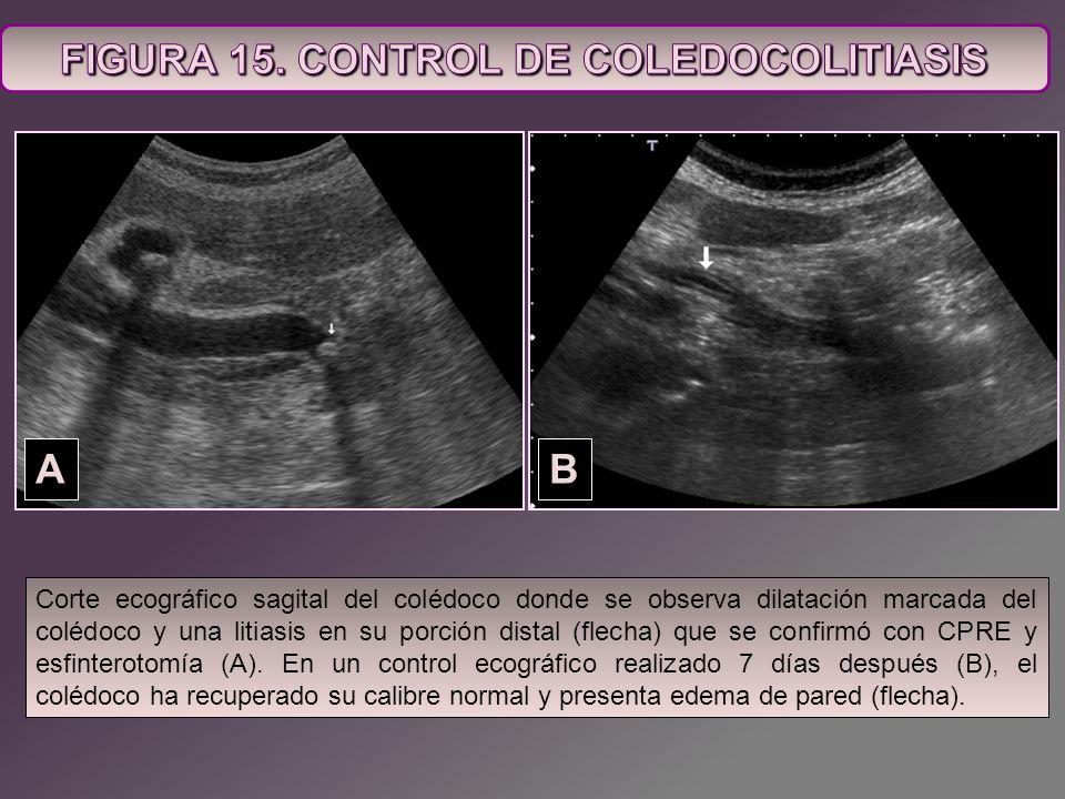 Corte ecográfico sagital del colédoco donde se observa dilatación marcada del colédoco y una litiasis en su porción distal (flecha) que se confirmó co