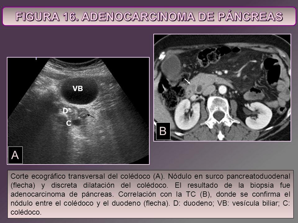 Corte ecográfico transversal del colédoco (A). Nódulo en surco pancreatoduodenal (flecha) y discreta dilatación del colédoco. El resultado de la biops