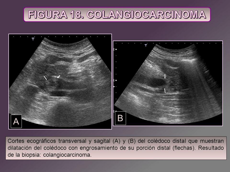 Cortes ecográficos transversal y sagital (A) y (B) del colédoco distal que muestran dilatación del colédoco con engrosamiento de su porción distal (fl