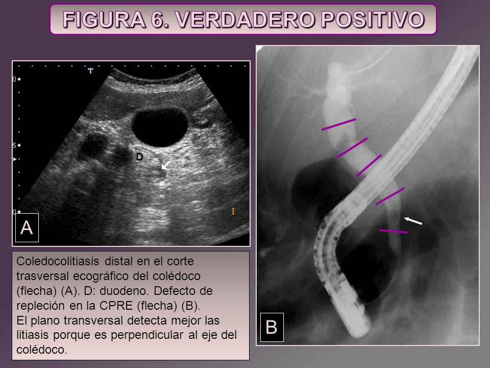 Coledocolitiasis distal en el corte trasversal ecográfico del colédoco (flecha) (A). D: duodeno. Defecto de repleción en la CPRE (flecha) (B). El plan
