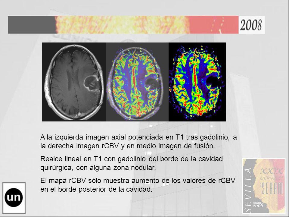 A la izquierda imagen axial potenciada en T1 tras gadolinio, a la derecha imagen rCBV y en medio imagen de fusión. Realce lineal en T1 con gadolinio d