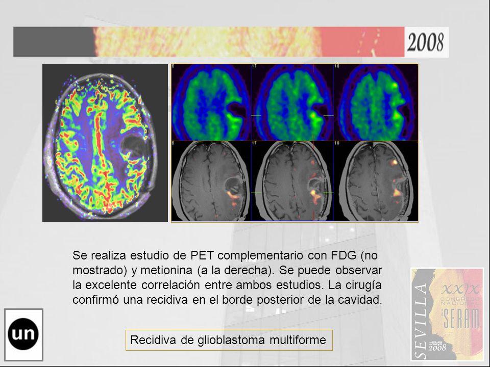 Recidiva de glioblastoma multiforme Se realiza estudio de PET complementario con FDG (no mostrado) y metionina (a la derecha). Se puede observar la ex