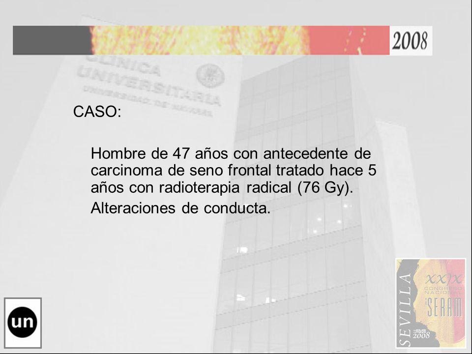 CASO: Hombre de 47 años con antecedente de carcinoma de seno frontal tratado hace 5 años con radioterapia radical (76 Gy). Alteraciones de conducta.