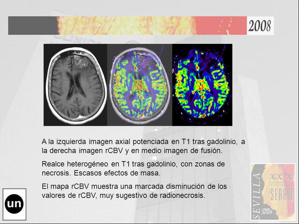 A la izquierda imagen axial potenciada en T1 tras gadolinio, a la derecha imagen rCBV y en medio imagen de fusión. Realce heterogéneo en T1 tras gadol