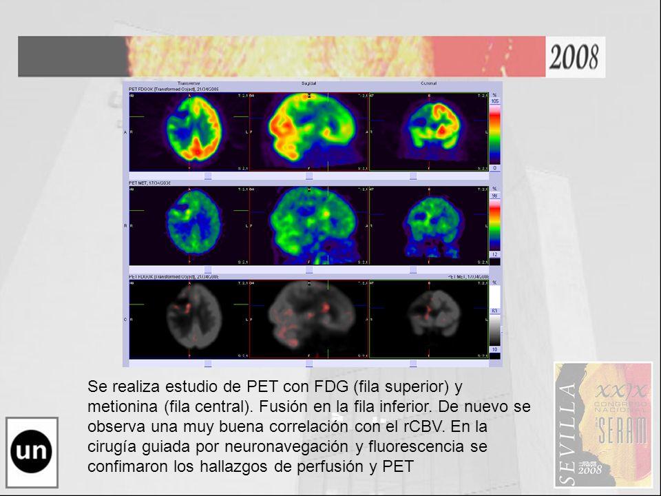 Se realiza estudio de PET con FDG (fila superior) y metionina (fila central). Fusión en la fila inferior. De nuevo se observa una muy buena correlació