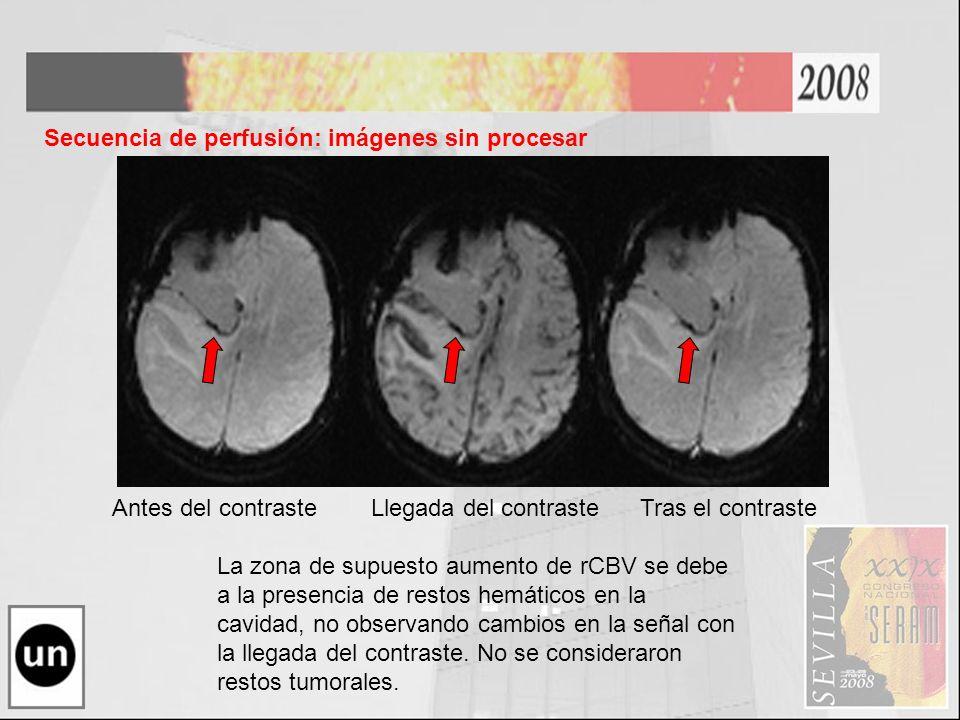 Antes del contraste Llegada del contraste Tras el contraste Secuencia de perfusión: imágenes sin procesar La zona de supuesto aumento de rCBV se debe