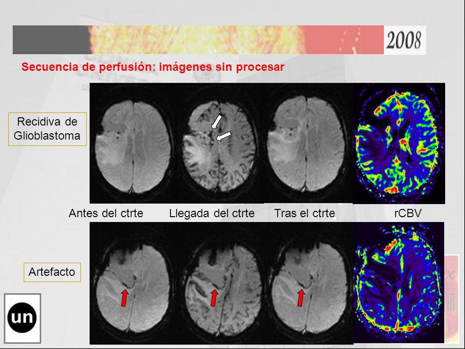 Antes del ctrte Llegada del ctrte Tras el ctrterCBV Secuencia de perfusión: imágenes sin procesar Recidiva de Glioblastoma Artefacto