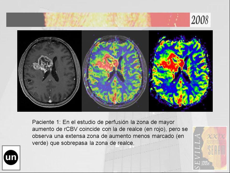 Paciente 1: En el estudio de perfusión la zona de mayor aumento de rCBV coincide con la de realce (en rojo), pero se observa una extensa zona de aumen