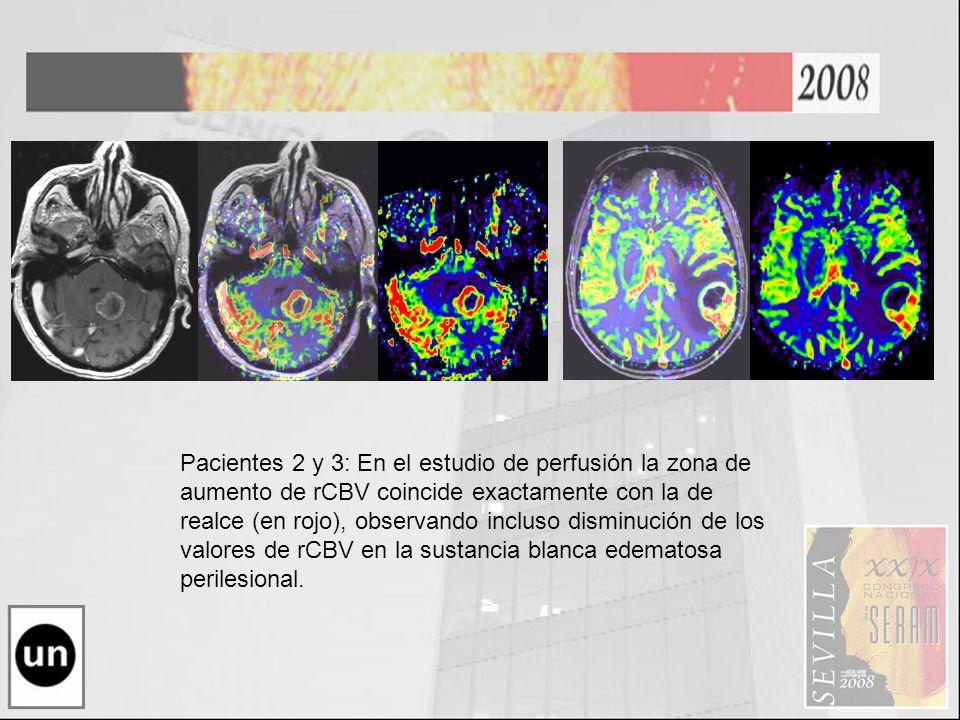 Pacientes 2 y 3: En el estudio de perfusión la zona de aumento de rCBV coincide exactamente con la de realce (en rojo), observando incluso disminución