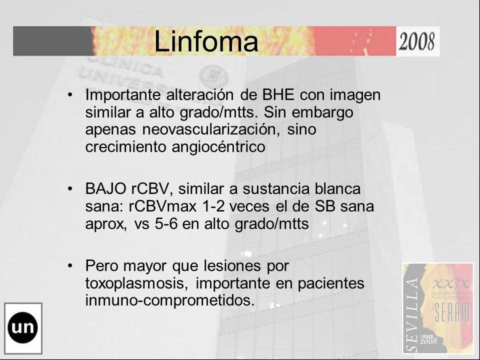 Linfoma Importante alteración de BHE con imagen similar a alto grado/mtts. Sin embargo apenas neovascularización, sino crecimiento angiocéntrico BAJO