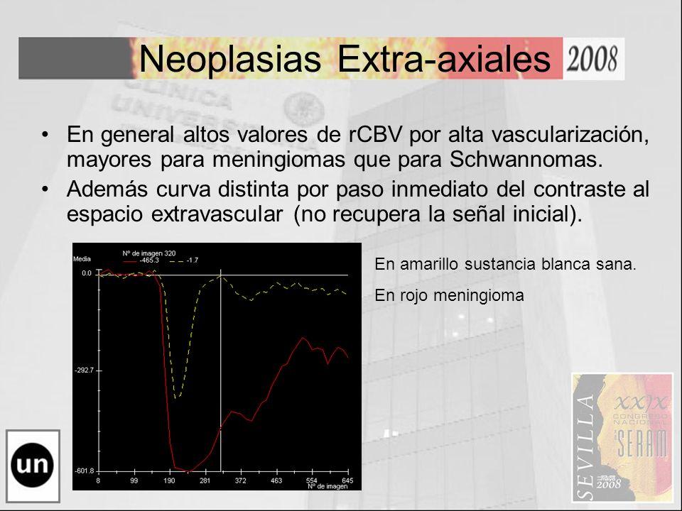 Neoplasias Extra-axiales En general altos valores de rCBV por alta vascularización, mayores para meningiomas que para Schwannomas. Además curva distin