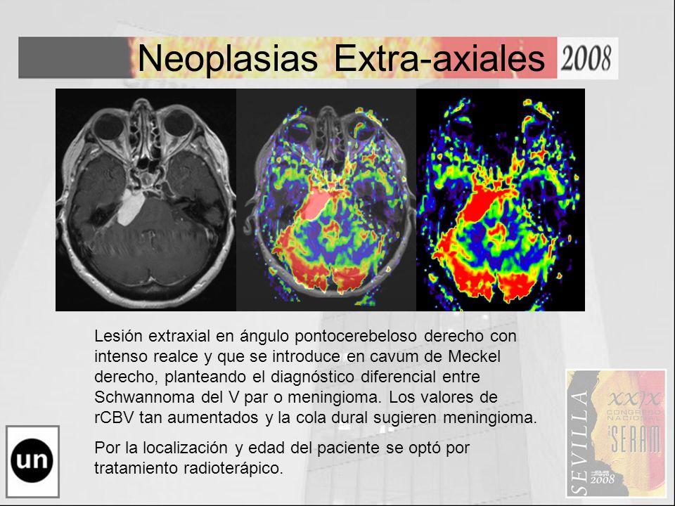 Neoplasias Extra-axiales Lesión extraxial en ángulo pontocerebeloso derecho con intenso realce y que se introduce en cavum de Meckel derecho, plantean