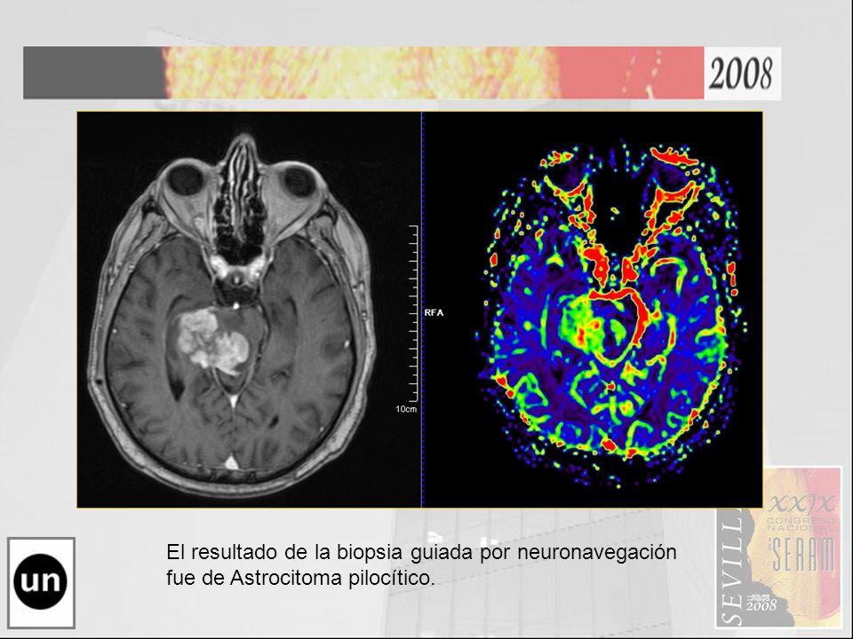 El resultado de la biopsia guiada por neuronavegación fue de Astrocitoma pilocítico.