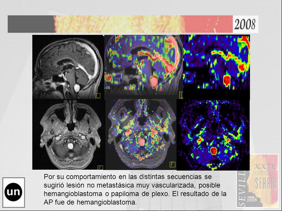Por su comportamiento en las distintas secuencias se sugirió lesión no metastásica muy vascularizada, posible hemangioblastoma o papiloma de plexo. El