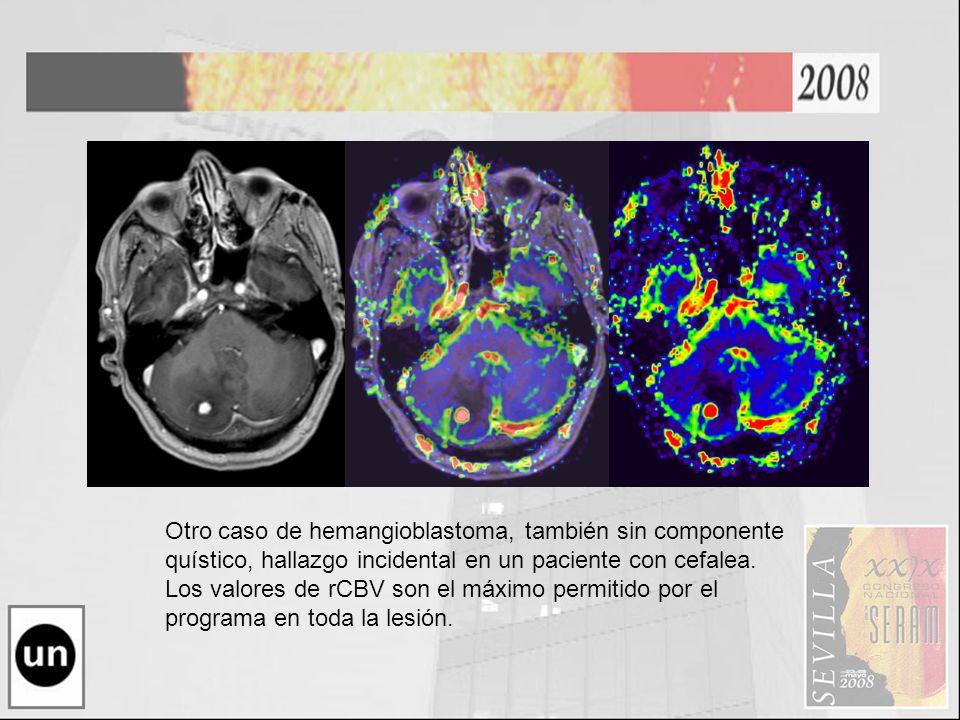 Otro caso de hemangioblastoma, también sin componente quístico, hallazgo incidental en un paciente con cefalea. Los valores de rCBV son el máximo perm