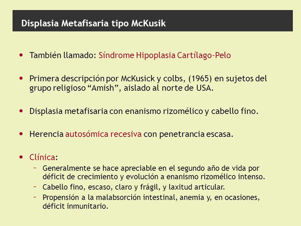 Displasia Metafisaria tipo McKusik También llamado: Síndrome Hipoplasia Cartílago-Pelo Primera descripción por McKusick y colbs, (1965) en sujetos del grupo religioso Amish, aislado al norte de USA.