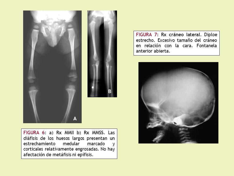 FIGURA 7: Rx cráneo lateral.Diploe estrecho. Excesivo tamaño del cráneo en relación con la cara.