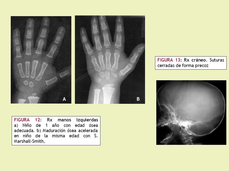 FIGURA 12: Rx manos izquierdas a) Niño de 1 año con edad ósea adecuada.