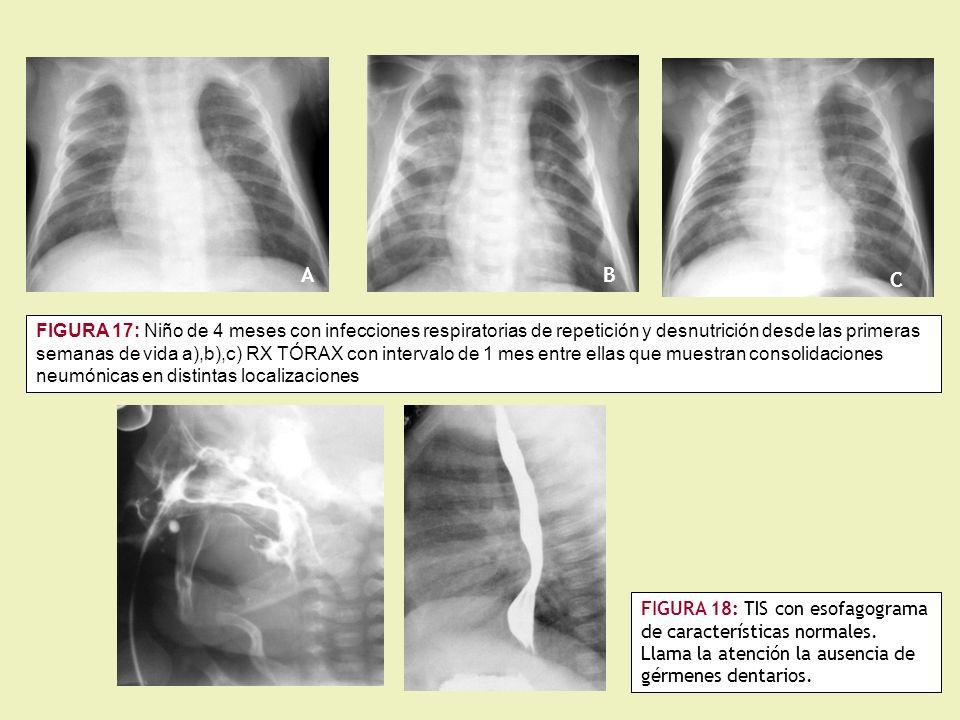FIGURA 17: Niño de 4 meses con infecciones respiratorias de repetición y desnutrición desde las primeras semanas de vida a),b),c) RX TÓRAX con intervalo de 1 mes entre ellas que muestran consolidaciones neumónicas en distintas localizaciones FIGURA 18: TIS con esofagograma de características normales.