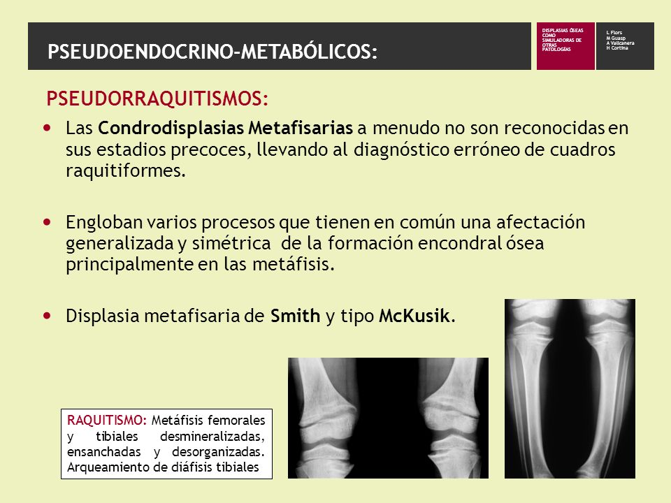 Displasia Metafisaria de Smith También llamada: Condrodistrofia metafisaria dominante.