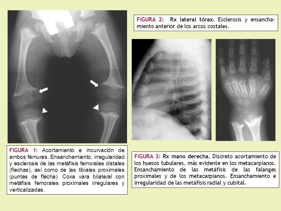 FIGURA 16: a) Múltiples osificaciones musculares y tendinosas de la pelvis al fémur proximal (flechas).