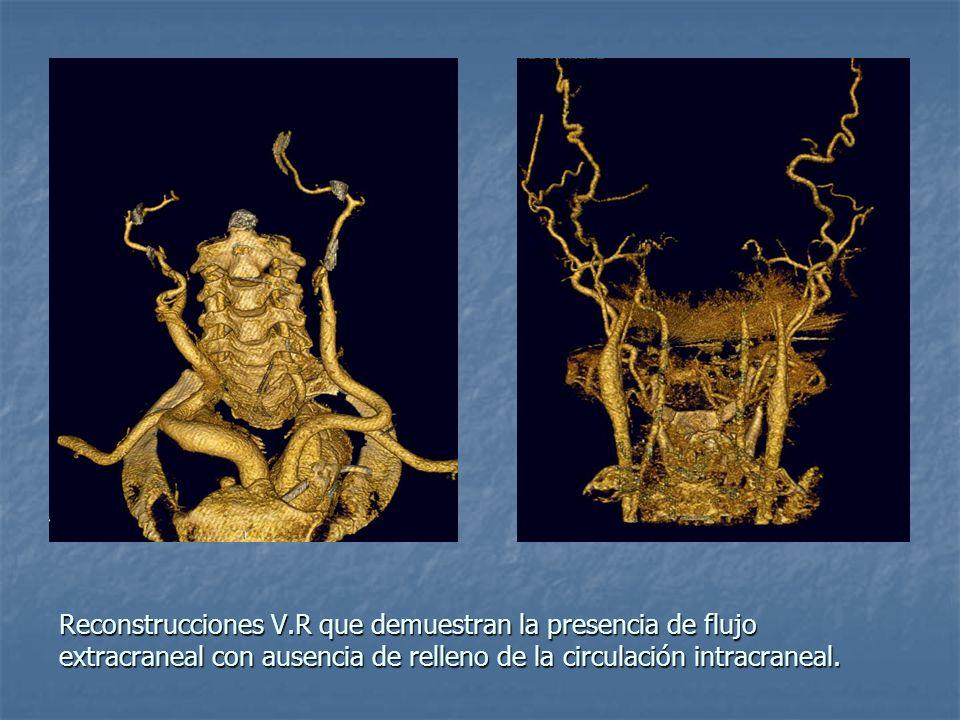 Reconstrucciones V.R que demuestran la presencia de flujo extracraneal con ausencia de relleno de la circulación intracraneal.