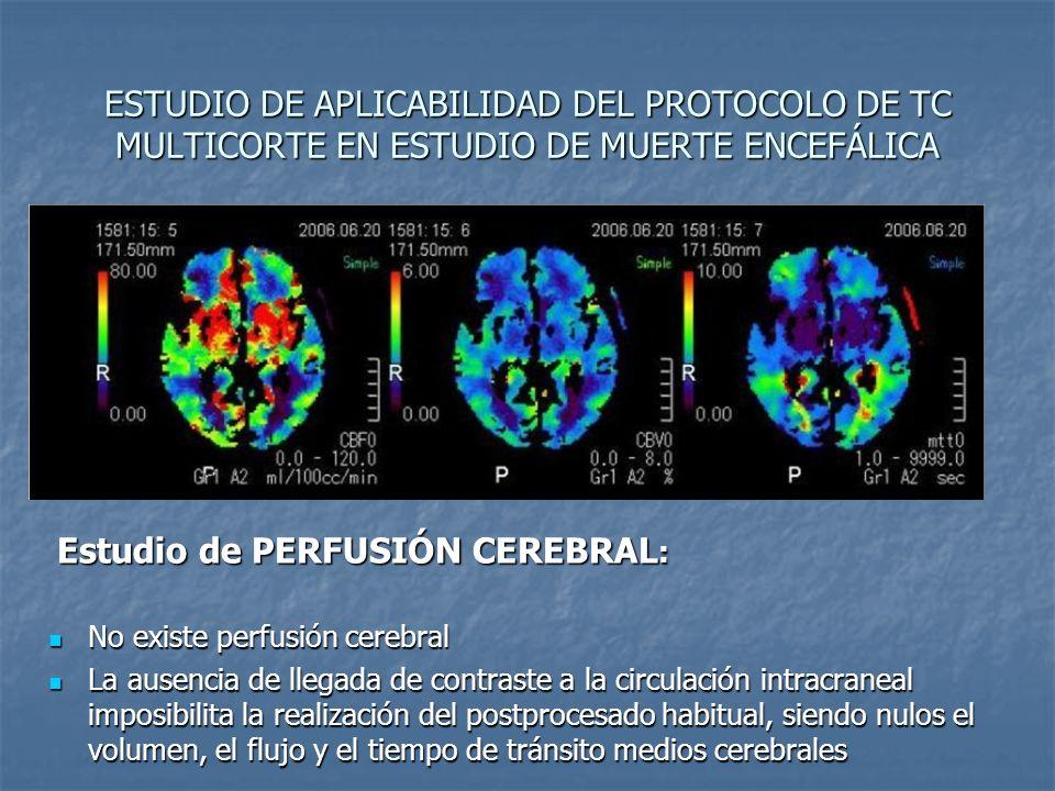 ESTUDIO DE APLICABILIDAD DEL PROTOCOLO DE TC MULTICORTE EN ESTUDIO DE MUERTE ENCEFÁLICA Estudio de PERFUSIÓN CEREBRAL : Estudio de PERFUSIÓN CEREBRAL