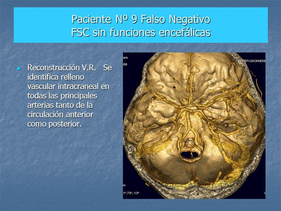 Paciente Nº 9 Falso Negativo FSC sin funciones encefálicas Reconstrucción V.R. Se identifica relleno vascular intracraneal en todas las principales ar