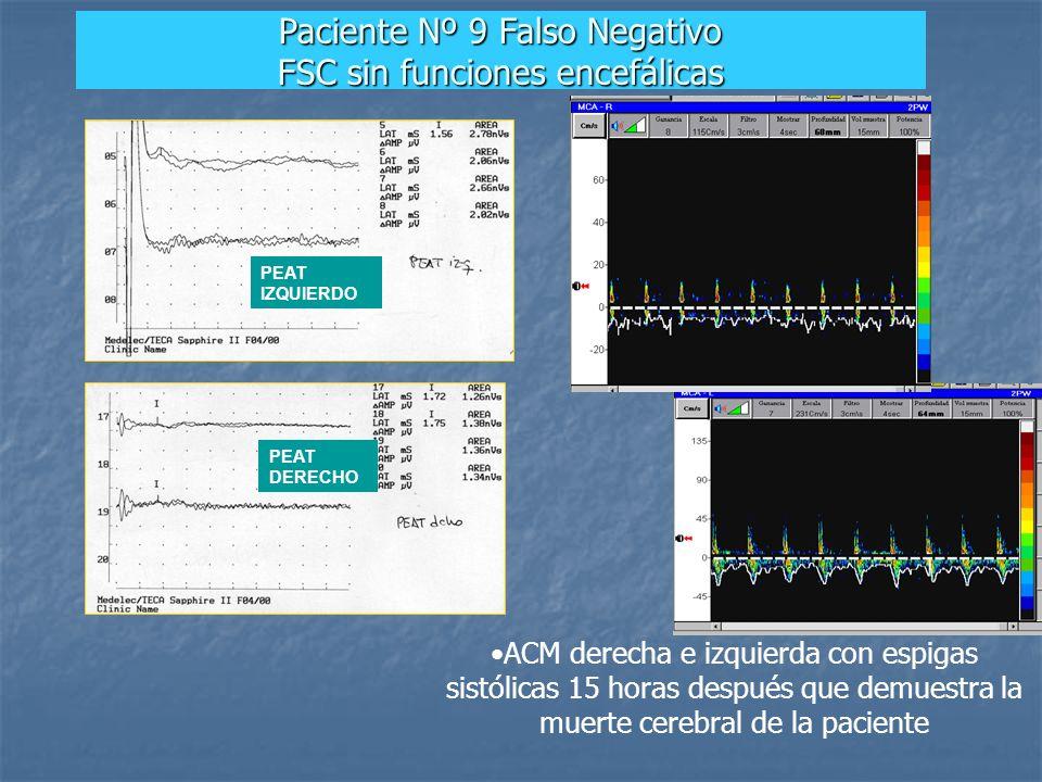 ACM derecha e izquierda con espigas sistólicas 15 horas después que demuestra la muerte cerebral de la paciente PEAT IZQUIERDO PEAT DERECHO Paciente N