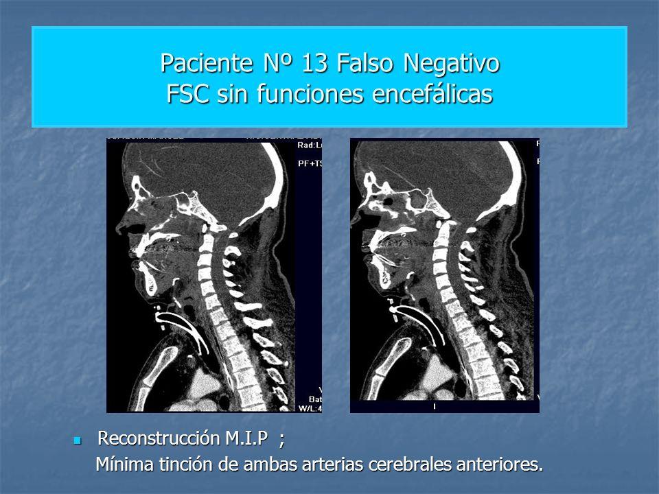 Paciente Nº 13 Falso Negativo FSC sin funciones encefálicas Reconstrucción M.I.P ; Reconstrucción M.I.P ; Mínima tinción de ambas arterias cerebrales