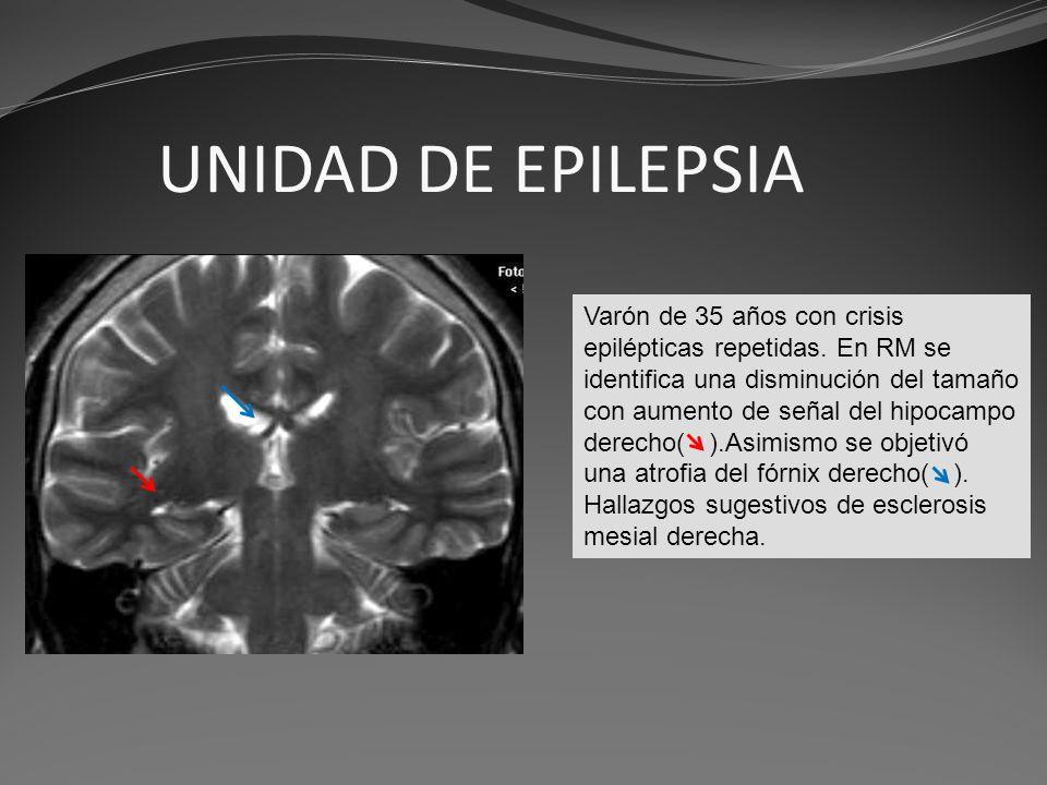 UNIDAD DE EPILEPSIA Varón de 35 años con crisis epilépticas repetidas. En RM se identifica una disminución del tamaño con aumento de señal del hipocam