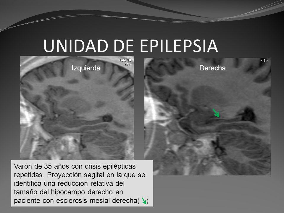 UNIDAD DE EPILEPSIA Figueroa Varón de 35 años con crisis epilépticas repetidas. Proyección sagital en la que se identifica una reducción relativa del