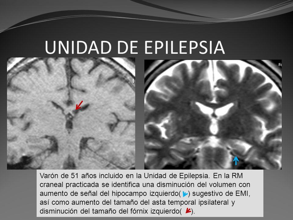 UNIDAD DE EPILEPSIA Gomez Varón de 51 años incluido en la Unidad de Epilepsia. En la RM craneal practicada se identifica una disminución del volumen c