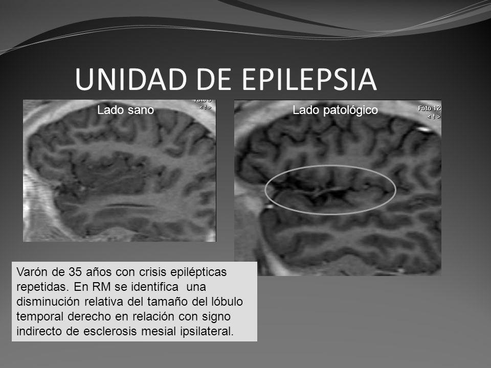 UNIDAD DE EPILEPSIA Varón de 35 años con crisis epilépticas repetidas. En RM se identifica una disminución relativa del tamaño del lóbulo temporal der
