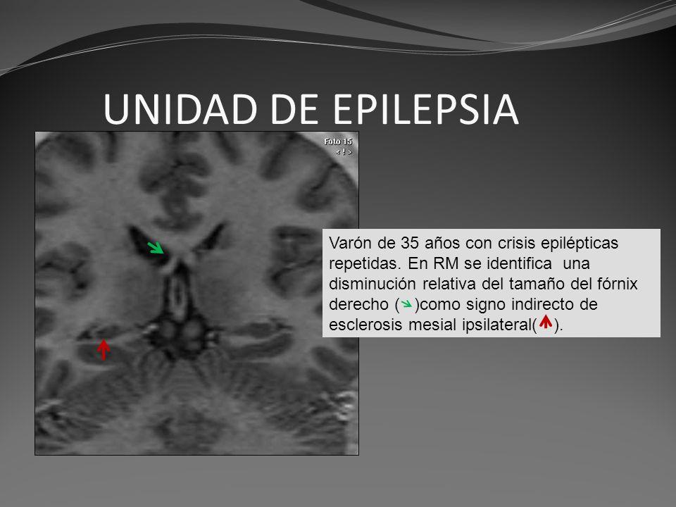 UNIDAD DE EPILEPSIA Varón de 35 años con crisis epilépticas repetidas. En RM se identifica una disminución relativa del tamaño del fórnix derecho ( )c