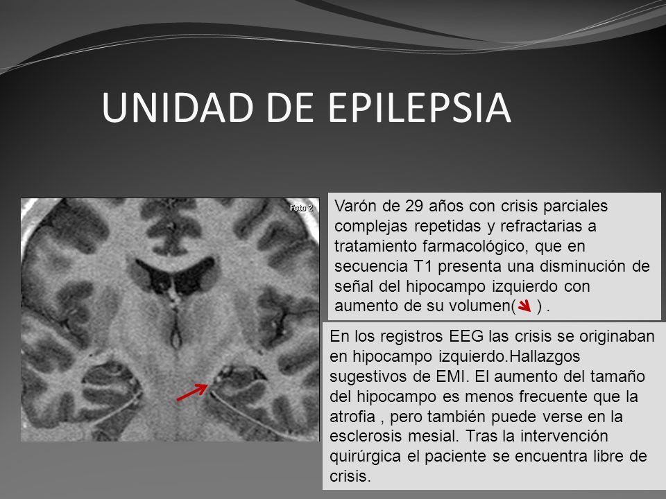 UNIDAD DE EPILEPSIA Rodr.rodr. Varón de 29 años con crisis parciales complejas repetidas y refractarias a tratamiento farmacológico, que en secuencia